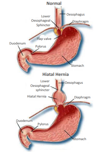 Information for Patients suffering from Hiatus Hernia - Yeovil ...