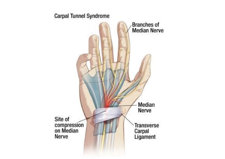 Carpal Tunnel Syndrome - Yeovil District Hospital : Yeovil ...